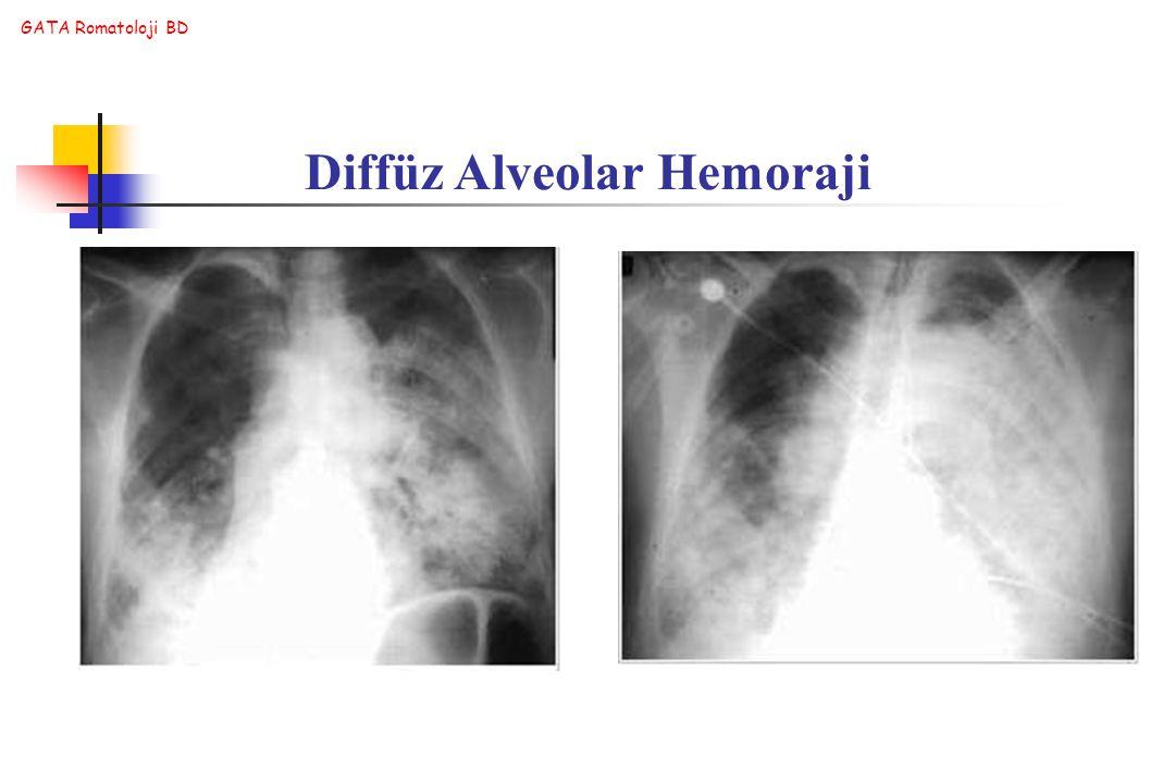 GATA Romatoloji BD Diffüz Alveolar Hemoraji