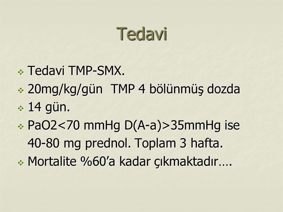 Tedavi  Tedavi TMP-SMX.  20mg/kg/gün TMP 4 bölünmüş dozda  14 gün.  PaO2 35mmHg ise 40-80 mg prednol. Toplam 3 hafta.  Mortalite %60'a kadar çıkm