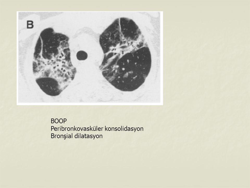 BOOP Peribronkovasküler konsolidasyon Bronşial dilatasyon