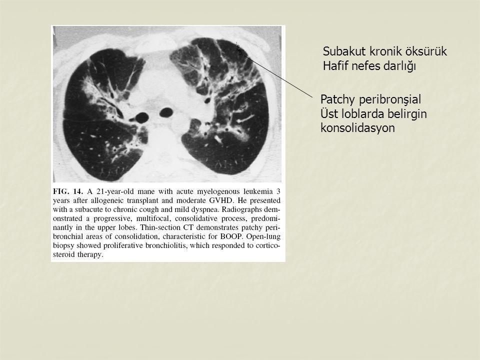 Subakut kronik öksürük Hafif nefes darlığı Patchy peribronşial Üst loblarda belirgin konsolidasyon