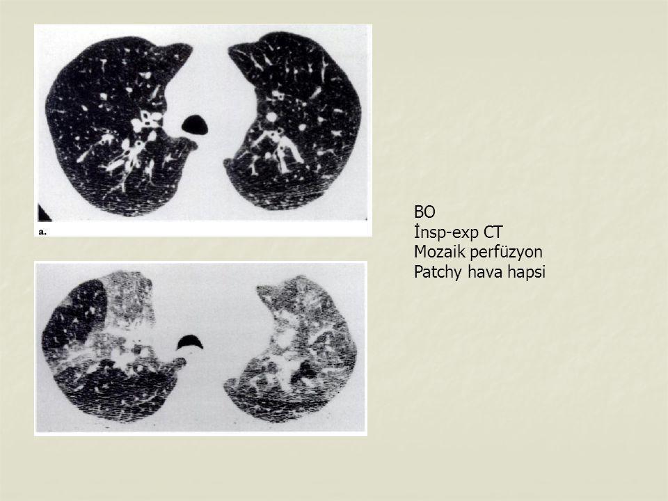 BO İnsp-exp CT Mozaik perfüzyon Patchy hava hapsi