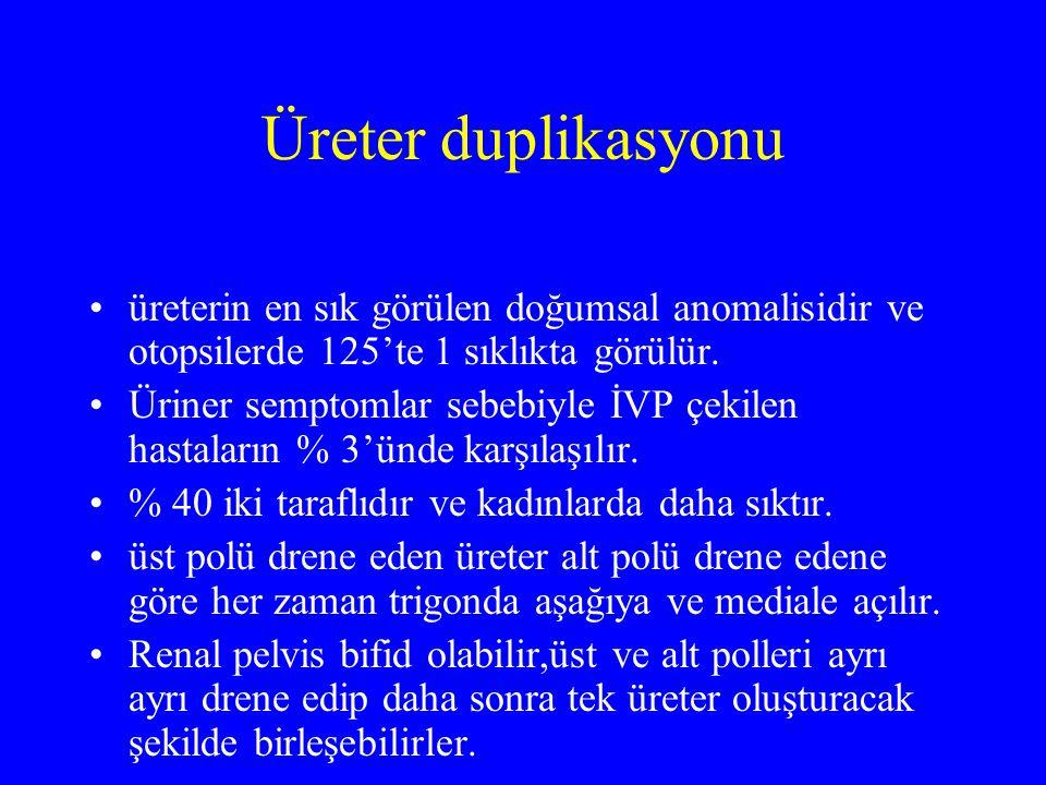 Üreter duplikasyonu üreterin en sık görülen doğumsal anomalisidir ve otopsilerde 125'te 1 sıklıkta görülür. Üriner semptomlar sebebiyle İVP çekilen ha