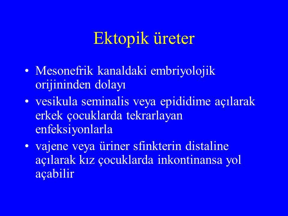 Ektopik üreter Mesonefrik kanaldaki embriyolojik orijininden dolayı vesikula seminalis veya epididime açılarak erkek çocuklarda tekrarlayan enfeksiyon