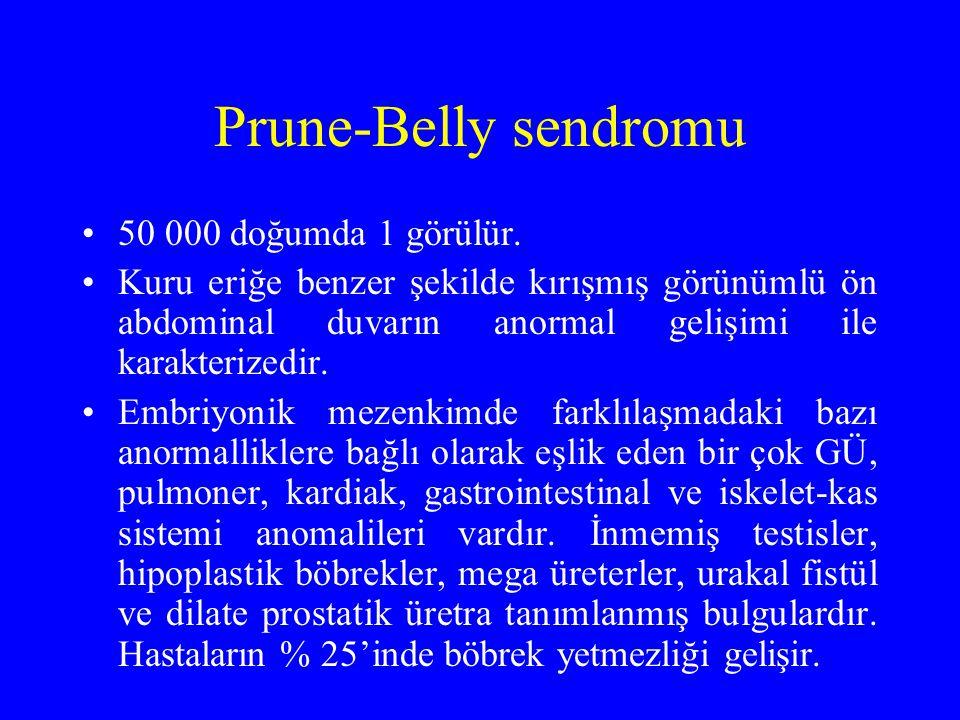 Prune-Belly sendromu 50 000 doğumda 1 görülür. Kuru eriğe benzer şekilde kırışmış görünümlü ön abdominal duvarın anormal gelişimi ile karakterizedir.