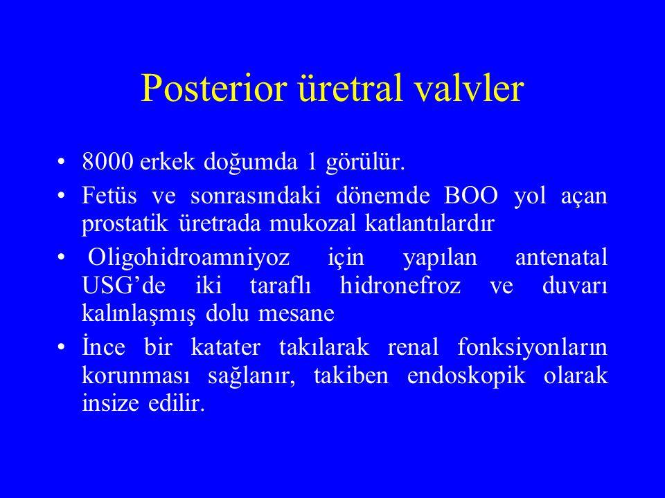 Posterior üretral valvler 8000 erkek doğumda 1 görülür. Fetüs ve sonrasındaki dönemde BOO yol açan prostatik üretrada mukozal katlantılardır Oligohidr