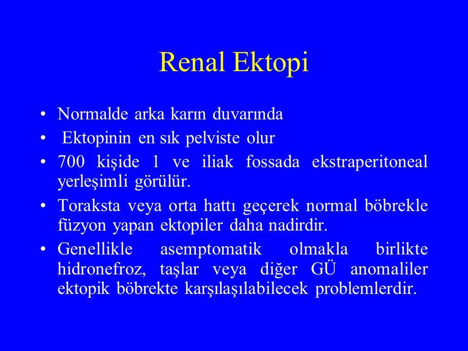 Renal Ektopi Normalde arka karın duvarında Ektopinin en sık pelviste olur 700 kişide 1 ve iliak fossada ekstraperitoneal yerleşimli görülür. Toraksta