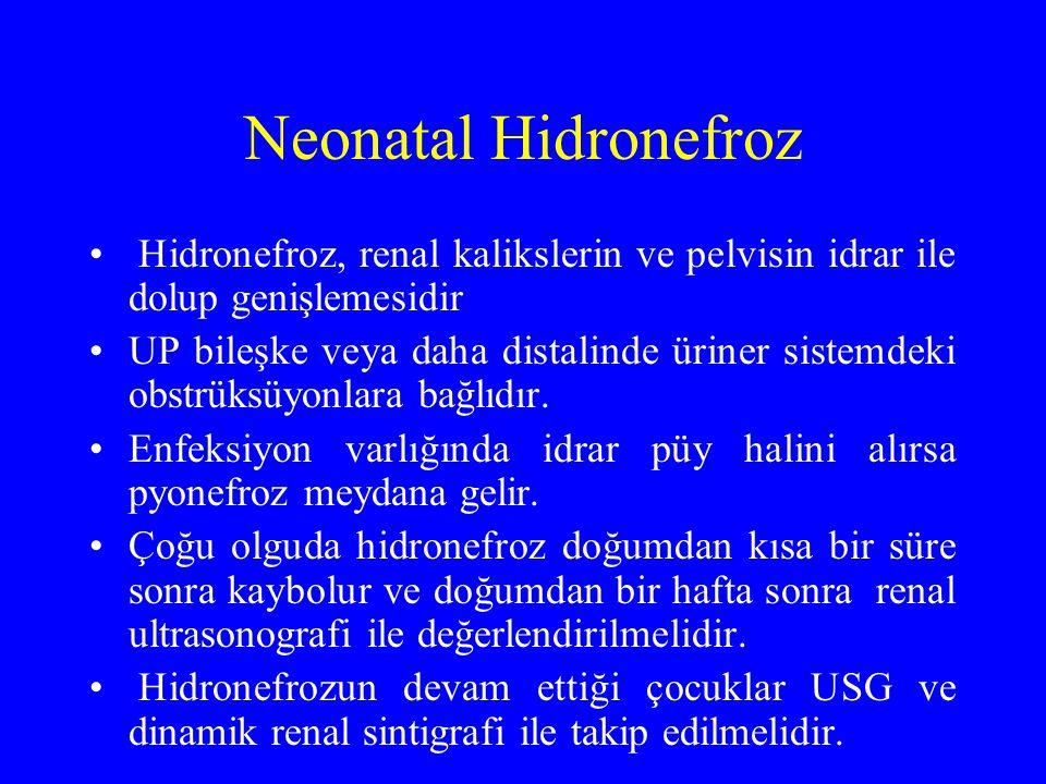 Neonatal Hidronefroz Hidronefroz, renal kalikslerin ve pelvisin idrar ile dolup genişlemesidir UP bileşke veya daha distalinde üriner sistemdeki obstr