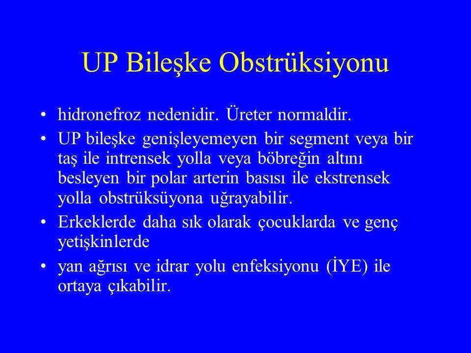UP Bileşke Obstrüksiyonu USG ile hidronefroz belirlenirse aynı taraf üreterini görmek ve taş varlığını araştırmak için İVP endikedir.