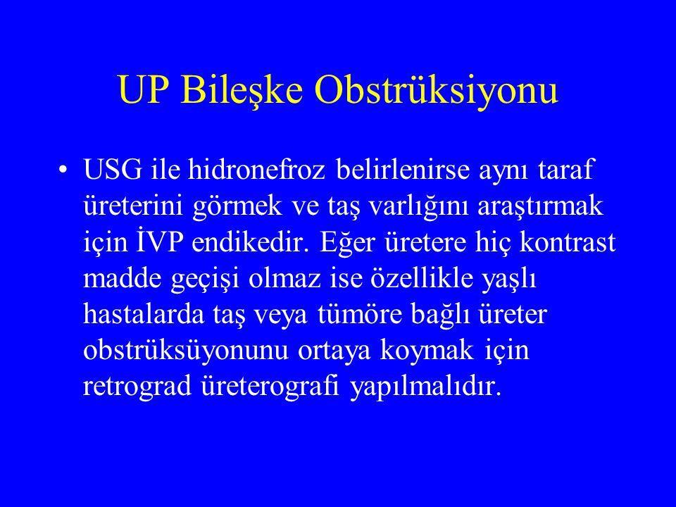 UP Bileşke Obstrüksiyonu USG ile hidronefroz belirlenirse aynı taraf üreterini görmek ve taş varlığını araştırmak için İVP endikedir. Eğer üretere hiç