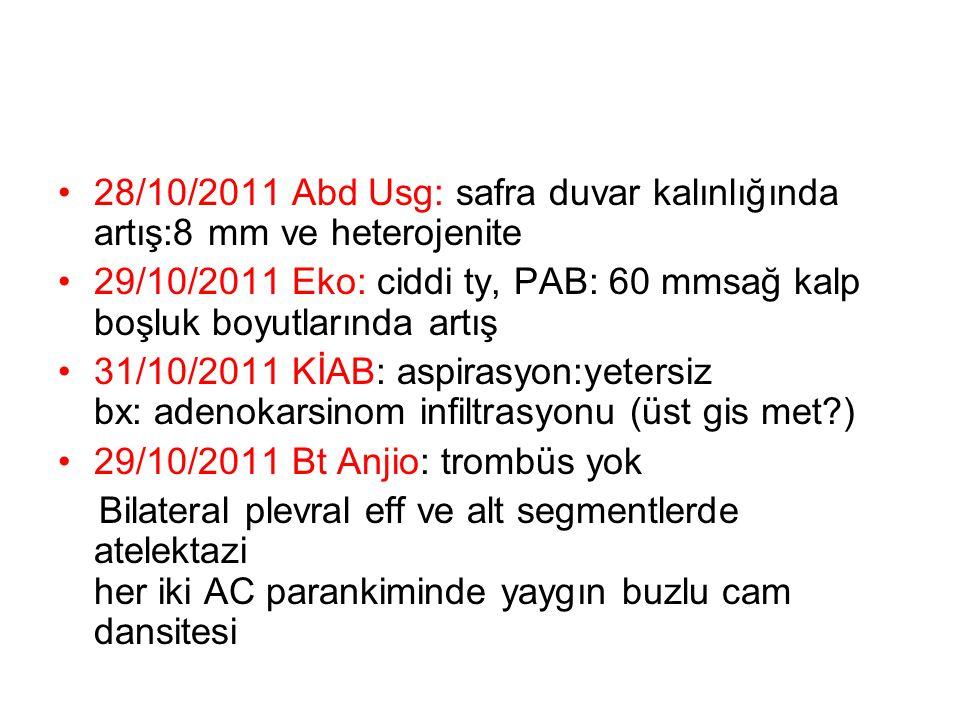28/10/2011 Abd Usg: safra duvar kalınlığında artış:8 mm ve heterojenite 29/10/2011 Eko: ciddi ty, PAB: 60 mmsağ kalp boşluk boyutlarında artış 31/10/2011 KİAB: aspirasyon:yetersiz bx: adenokarsinom infiltrasyonu (üst gis met?) 29/10/2011 Bt Anjio: trombüs yok Bilateral plevral eff ve alt segmentlerde atelektazi her iki AC parankiminde yaygın buzlu cam dansitesi