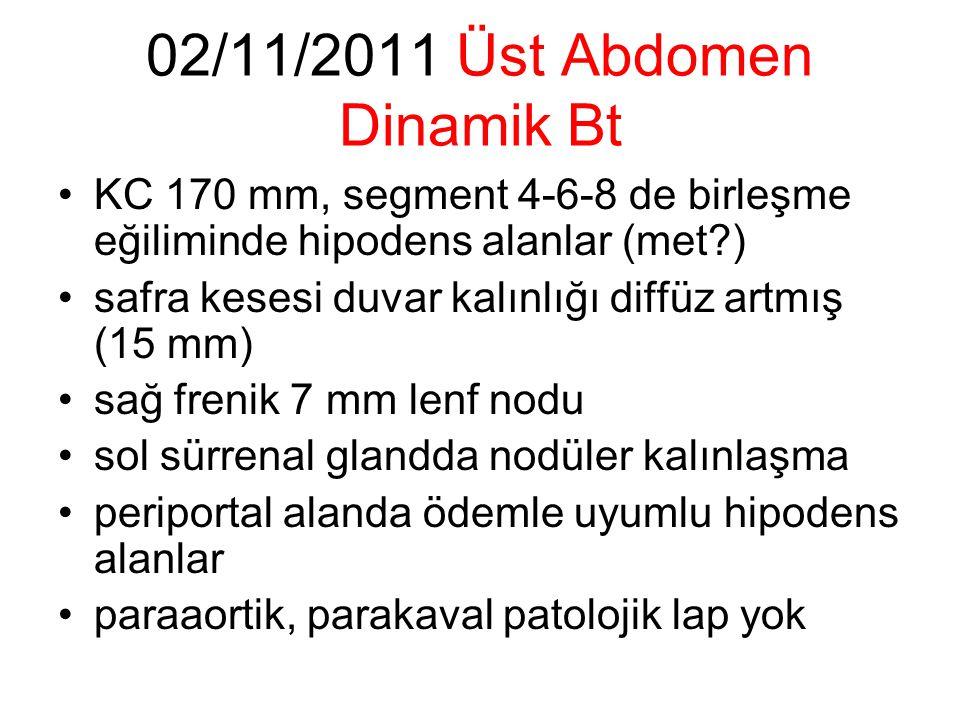 02/11/2011 Üst Abdomen Dinamik Bt KC 170 mm, segment 4-6-8 de birleşme eğiliminde hipodens alanlar (met?) safra kesesi duvar kalınlığı diffüz artmış (15 mm) sağ frenik 7 mm lenf nodu sol sürrenal glandda nodüler kalınlaşma periportal alanda ödemle uyumlu hipodens alanlar paraaortik, parakaval patolojik lap yok