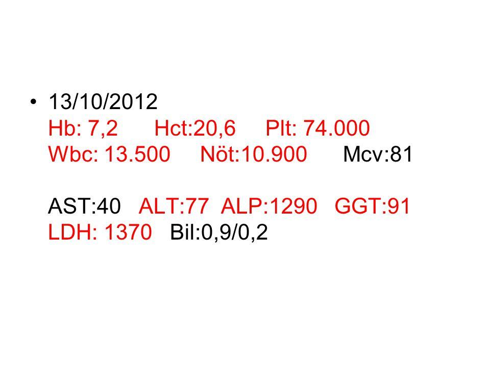 13/10/2012 Hb: 7,2 Hct:20,6 Plt: 74.000 Wbc: 13.500 Nöt:10.900 Mcv:81 AST:40 ALT:77 ALP:1290 GGT:91 LDH: 1370 Bil:0,9/0,2
