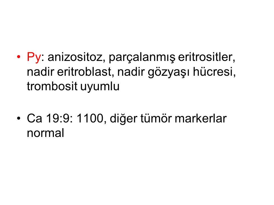 Py: anizositoz, parçalanmış eritrositler, nadir eritroblast, nadir gözyaşı hücresi, trombosit uyumlu Ca 19:9: 1100, diğer tümör markerlar normal