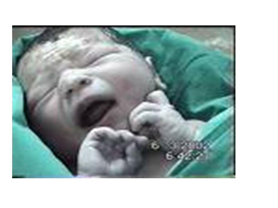 STRES ALTINDAKİ YENİDOĞAN (DİSTRESSED NEON ATE) MEKONYUM ASPİRASYONU Mekonyum bebeğin dışkısıdır.Genellikle doğum sonuna kadar fetüsün bağırsağında kalır.