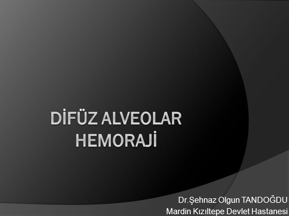 Difüz Alveolar Hemoraji SEMPTOM ▫ Genellikle 7 günden daha kısa sürede  Ateş  Öksürük  Hemoptizi  Dispne ▫ %33 hastada ilk başvuruda Hemoptizi olmayabilir  Yeni ortaya çıkmış alveolar infiltratlar  Hemoglobinde düşme  BAL da hemorajik sıvı tanıya yardımcı olabilir