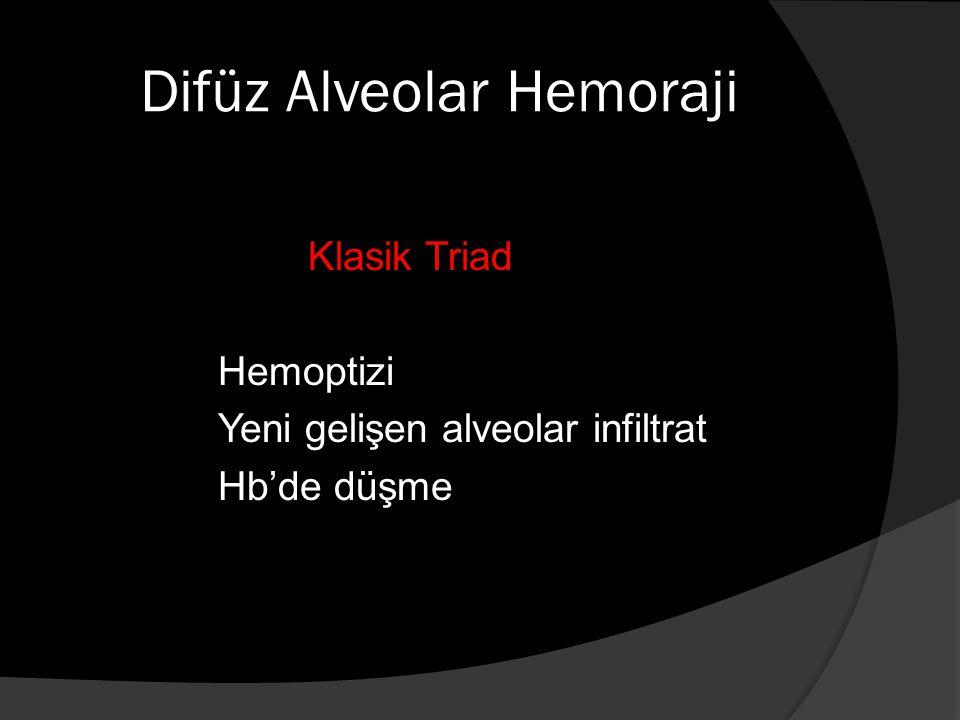 Difüz Alveolar Hemoraji Klasik Triad Hemoptizi Yeni gelişen alveolar infiltrat Hb'de düşme