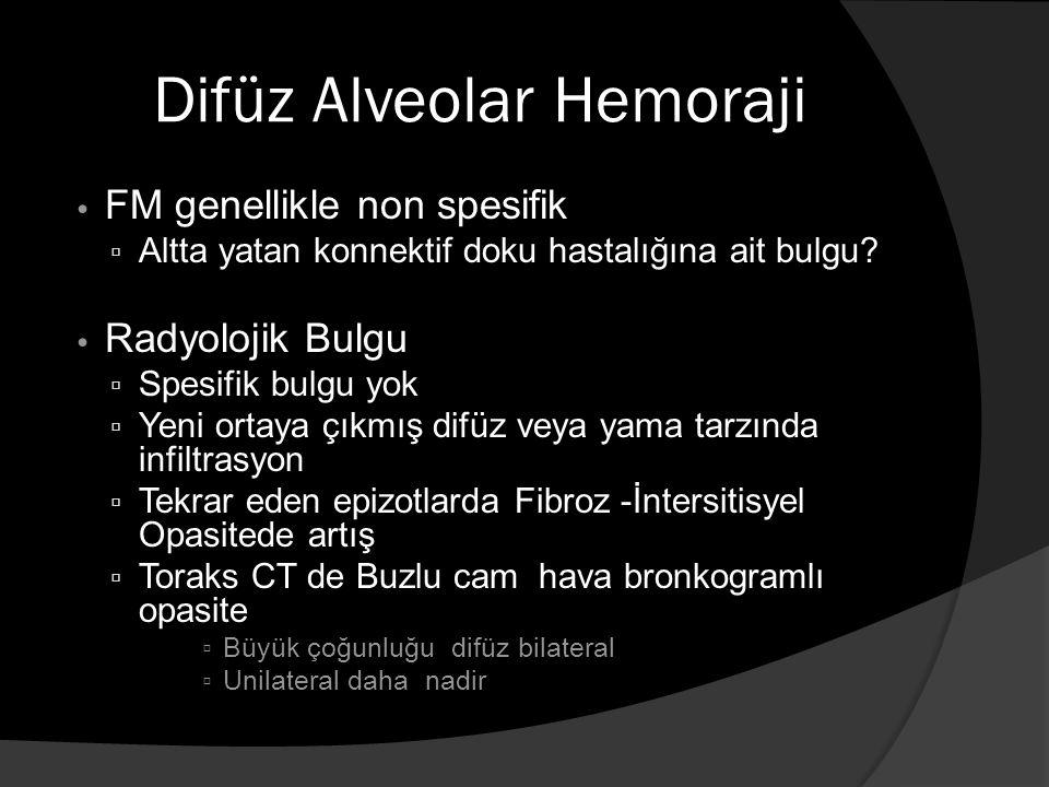 Difüz Alveolar Hemoraji FM genellikle non spesifik ▫ Altta yatan konnektif doku hastalığına ait bulgu.