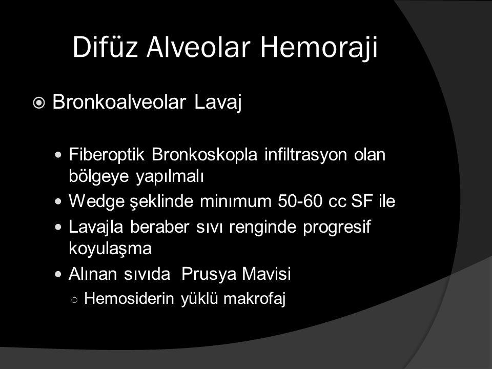 Difüz Alveolar Hemoraji  Bronkoalveolar Lavaj Fiberoptik Bronkoskopla infiltrasyon olan bölgeye yapılmalı Wedge şeklinde minımum 50-60 cc SF ile Lavajla beraber sıvı renginde progresif koyulaşma Alınan sıvıda Prusya Mavisi ○ Hemosiderin yüklü makrofaj