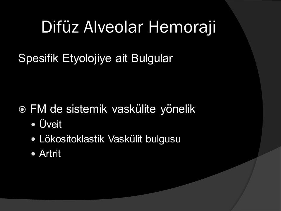 Difüz Alveolar Hemoraji Spesifik Etyolojiye ait Bulgular  FM de sistemik vaskülite yönelik Üveit Lökositoklastik Vaskülit bulgusu Artrit