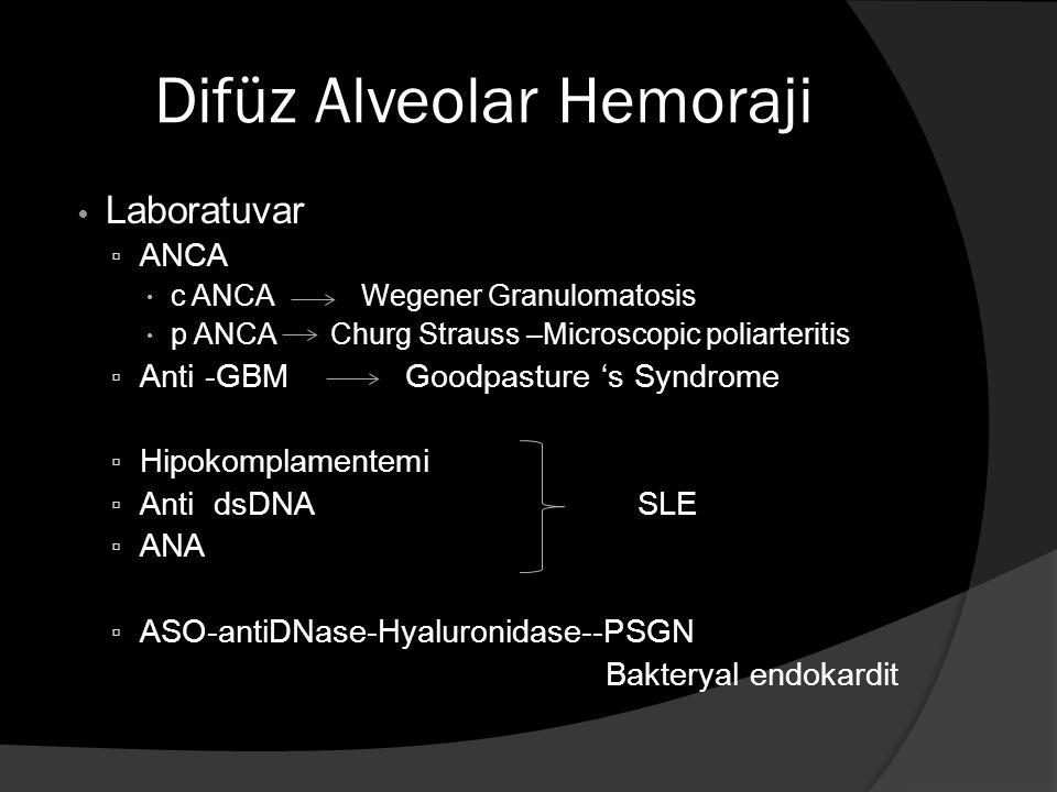Difüz Alveolar Hemoraji Laboratuvar ▫ ANCA  c ANCA Wegener Granulomatosis  p ANCA Churg Strauss –Microscopic poliarteritis ▫ Anti -GBM Goodpasture 's Syndrome ▫ Hipokomplamentemi ▫ Anti dsDNA SLE ▫ ANA ▫ ASO-antiDNase-Hyaluronidase--PSGN Bakteryal endokardit