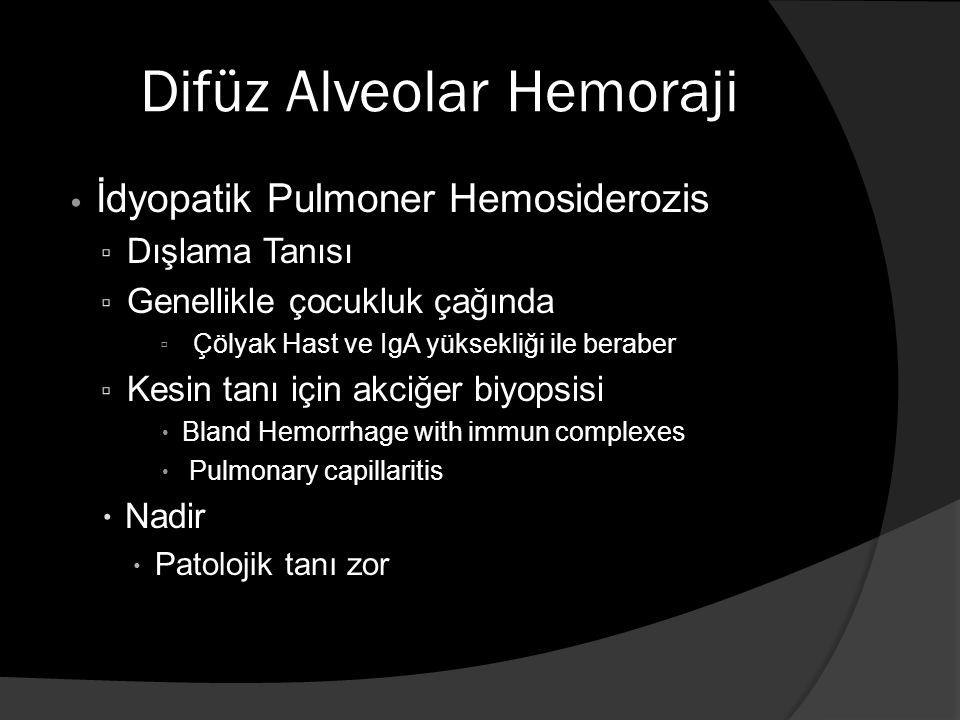 Difüz Alveolar Hemoraji İdyopatik Pulmoner Hemosiderozis ▫ Dışlama Tanısı ▫ Genellikle çocukluk çağında ▫ Çölyak Hast ve IgA yüksekliği ile beraber ▫ Kesin tanı için akciğer biyopsisi  Bland Hemorrhage with immun complexes  Pulmonary capillaritis  Nadir  Patolojik tanı zor