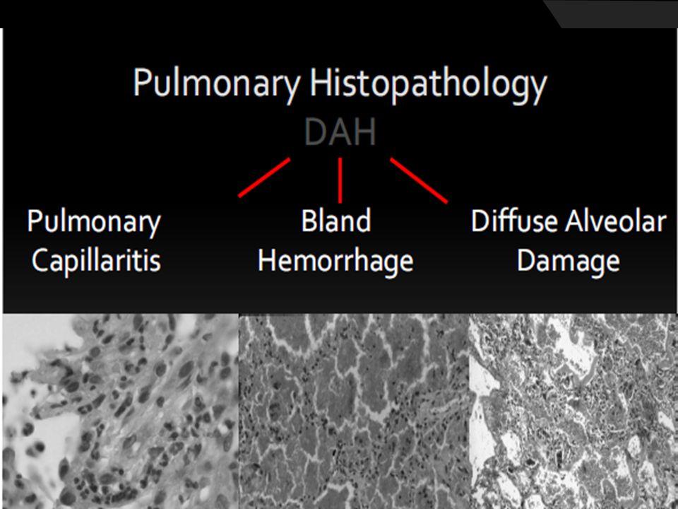 Difüz Alveolar Hemoraji  Laboratuvar Özel beklenen bulgu yok Altta yatan hastalığa ait bulgular Renal tutulumu olanlarda Kr yüksekliği Konnektif Doku hastalığında spesifik Markerlar ESR yüksek Lökositoz ve Hb takibinde düşme