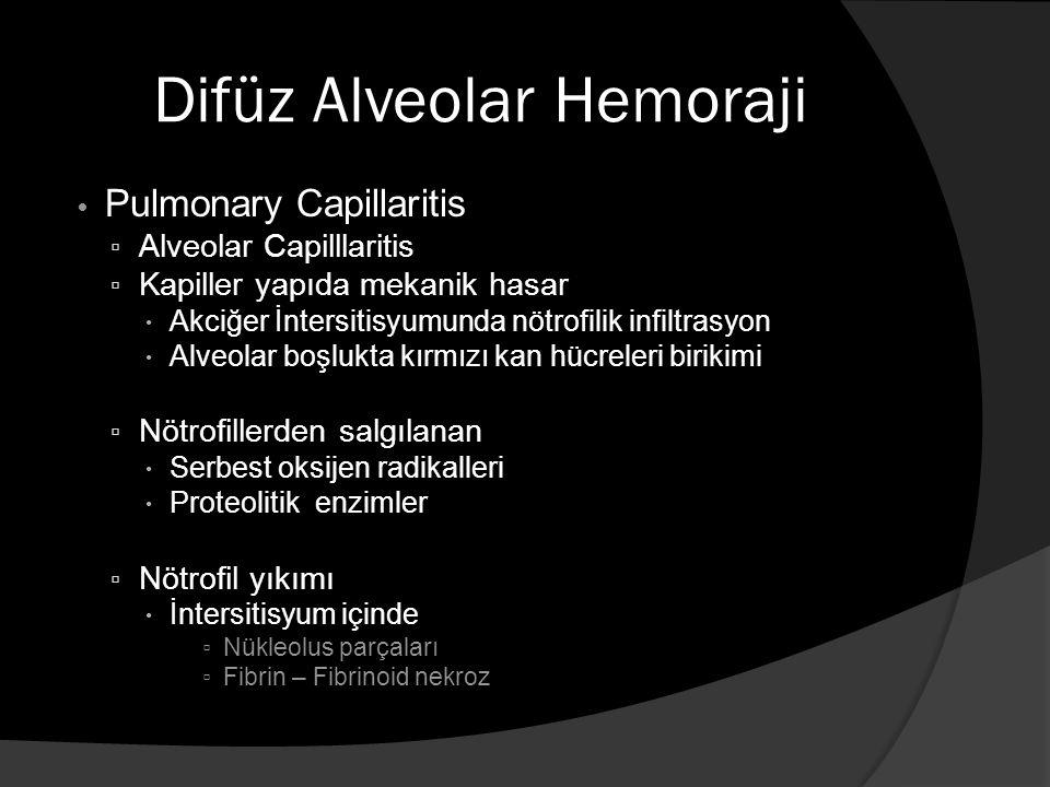 Difüz Alveolar Hemoraji Pulmonary Capillaritis ▫ Alveolar Capilllaritis ▫ Kapiller yapıda mekanik hasar  Akciğer İntersitisyumunda nötrofilik infiltrasyon  Alveolar boşlukta kırmızı kan hücreleri birikimi ▫ Nötrofillerden salgılanan  Serbest oksijen radikalleri  Proteolitik enzimler ▫ Nötrofil yıkımı  İntersitisyum içinde ▫ Nükleolus parçaları ▫ Fibrin – Fibrinoid nekroz