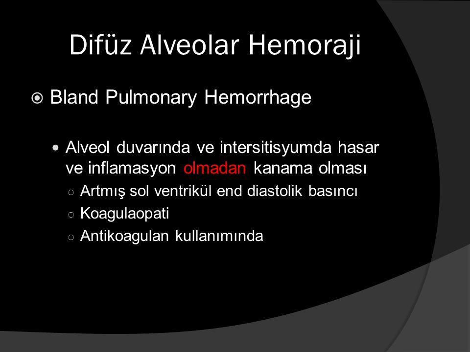 Difüz Alveolar Hemoraji  BAL  Biyopsi Genellikle en sık etkilenen 2 organ ○ Akciğer ○ Böbrek