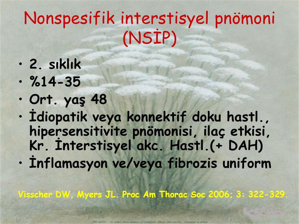 Nonspesifik interstisyel pnömoni (NSİP) 2. sıklık %14-35 Ort. yaş 48 İdiopatik veya konnektif doku hastl., hipersensitivite pnömonisi, ilaç etkisi, Kr