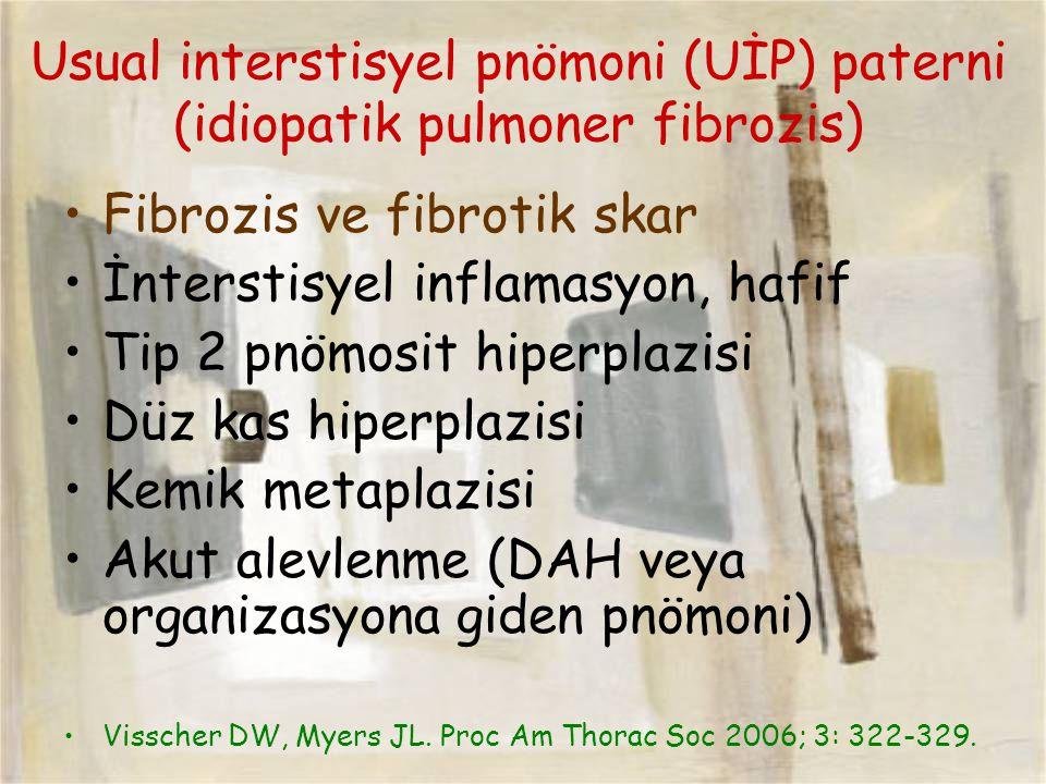 Usual interstisyel pnömoni (UİP) paterni (idiopatik pulmoner fibrozis) Fibrozis ve fibrotik skar İnterstisyel inflamasyon, hafif Tip 2 pnömosit hiperp