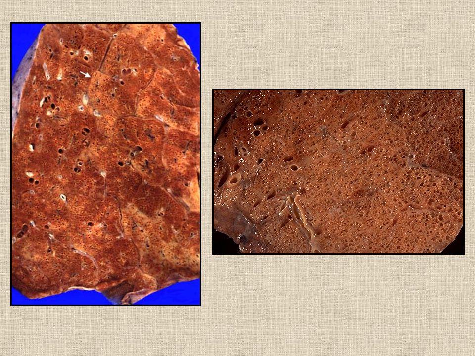 NSİP Sellüler NSİP: alveoler septalarda uniform, lenfosit plazma hücre infiltr.