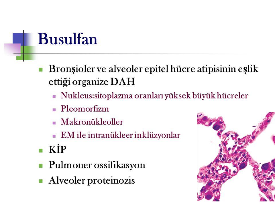 33 Busulfan Bron ş ioler ve alveoler epitel hücre atipisinin e ş lik etti ğ i organize DAH Nukleus:sitoplazma oranları yüksek büyük hücreler Pleomorfi