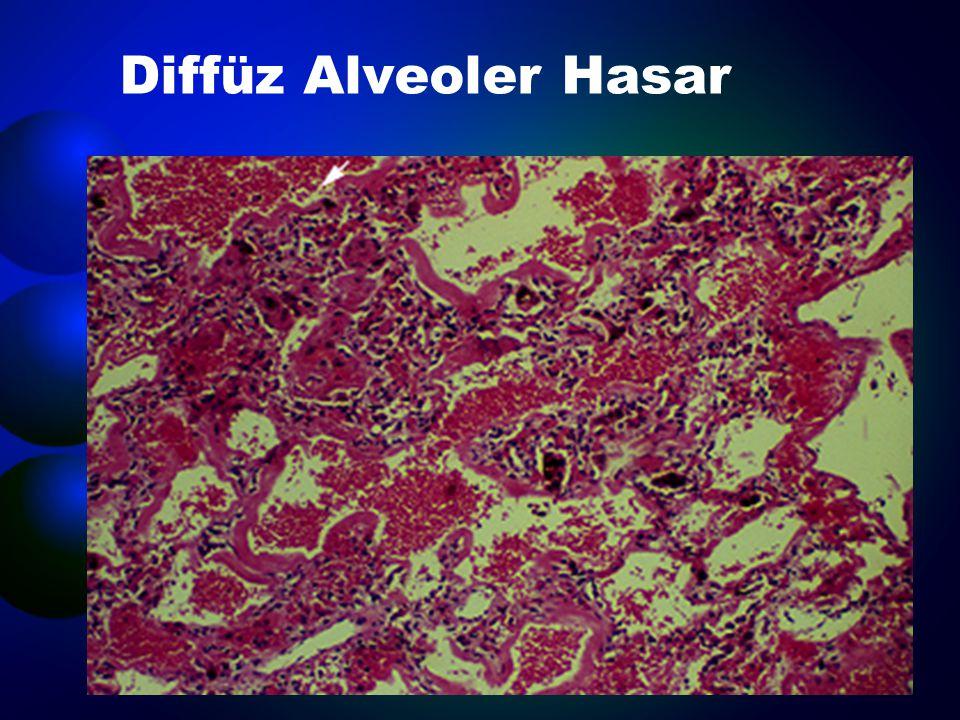  Akut respiratuar distress sendromu  İlaç toksisitesi  Polimiyozit  Sistemik Lupus Eritematoz  Kokain inhalasyonu  İmmün yetmezlikli kişideki infeksiyonlar
