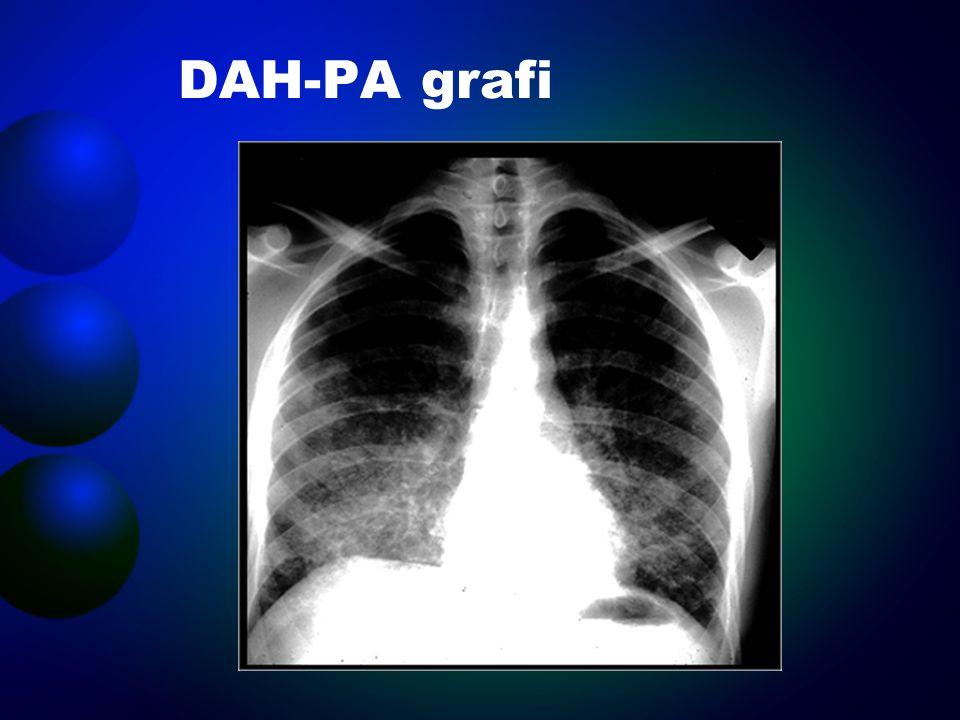 Bronkoskopi BAL sıvısının hemorajik görüntüsü Alveoler makrofajlarda hemosiderin saptanması (prusya mavisi) –BAL normalse alveoler hemoraji dışlanır Transbronşiyal akciğer biyopsisi altta yatan bir granülomatöz vaskülit.