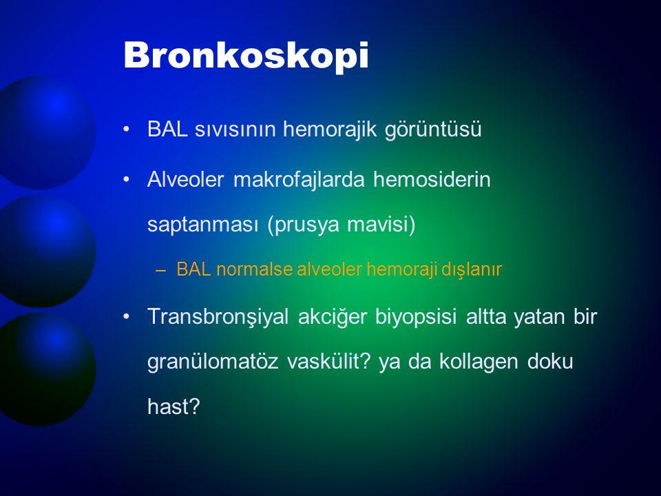 Bronkoskopi BAL sıvısının hemorajik görüntüsü Alveoler makrofajlarda hemosiderin saptanması (prusya mavisi) –BAL normalse alveoler hemoraji dışlanır T