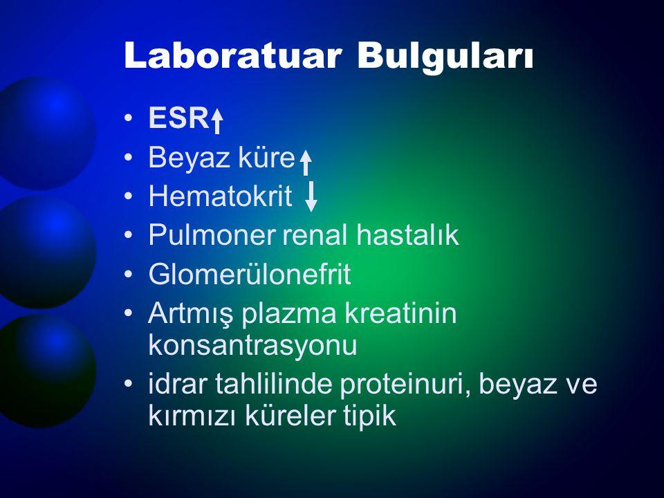 Laboratuar Bulguları ESR Beyaz küre Hematokrit Pulmoner renal hastalık Glomerülonefrit Artmış plazma kreatinin konsantrasyonu idrar tahlilinde protein