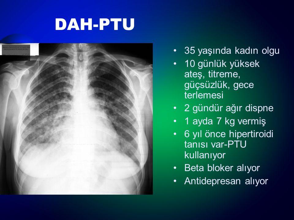 DAH-PTU 35 yaşında kadın olgu 10 günlük yüksek ateş, titreme, güçsüzlük, gece terlemesi 2 gündür ağır dispne 1 ayda 7 kg vermiş 6 yıl önce hipertiroid