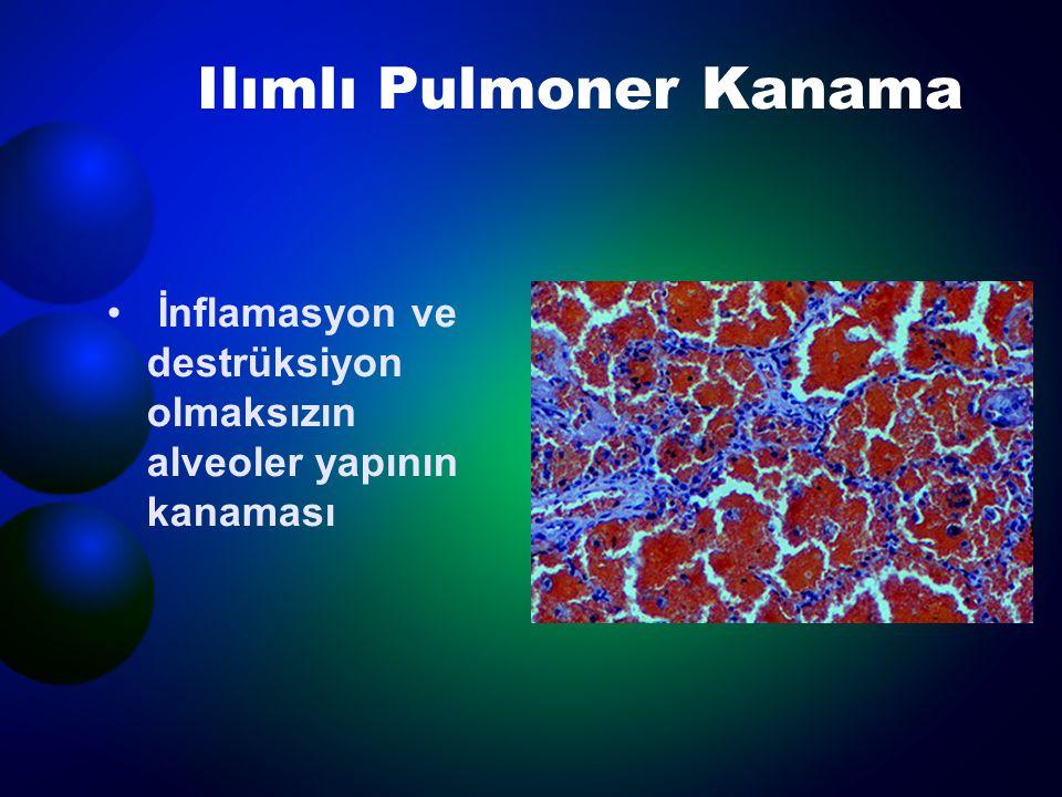 Ilımlı Pulmoner Kanama  Goodpasture Sendromu  Sistemik Lupus  İdiopatik Pulmoner Hemosideroz  Koagülopatiler  Mitral Darlığı  Trimellitic Anhidrit İnhalasyonu  Penisilamin, nitrofurantoin, amiodaron  Rapomisin