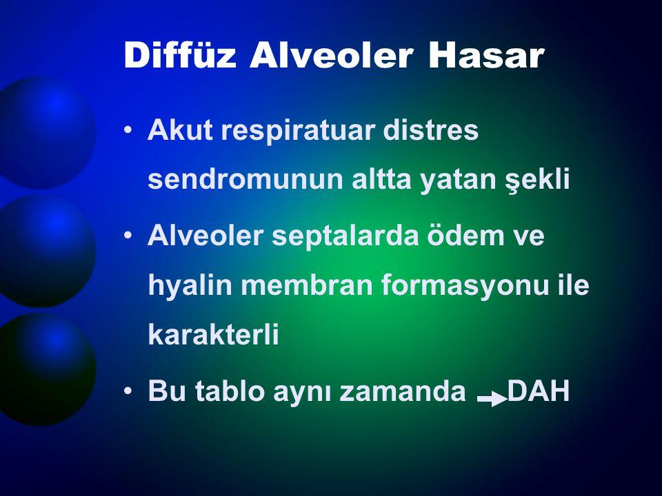 Diffüz Alveoler Hasar Akut respiratuar distres sendromunun altta yatan şekli Alveoler septalarda ödem ve hyalin membran formasyonu ile karakterli Bu t
