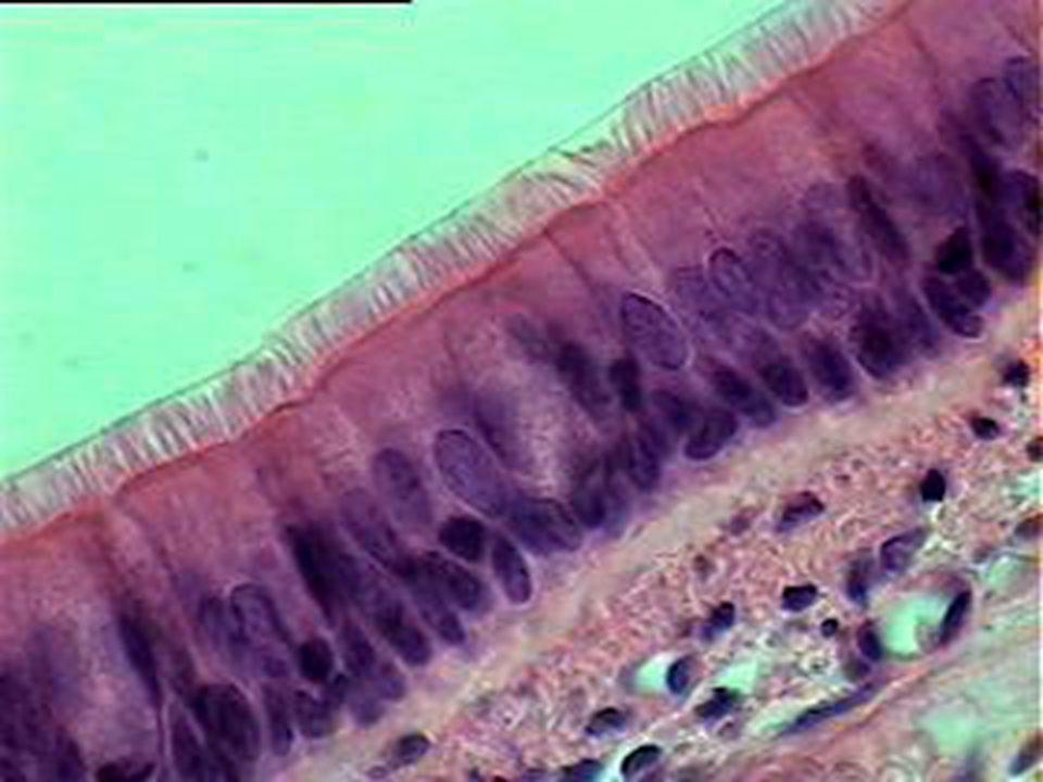 Tek katlı prizmatik çizgili kenarlı epitel:  Barsakların iç yüzünü döşeyen epiteldir  Çizgili kenarı daha az belirgin bir epitelde safra kesesinin içini döşer  Bu epitelin serbest yüzeyinde yüzey farklılaşması vardır  Bu farklılaşma ışık mikroskobu seviyesinde çizgili kenar veya fırçamsı kenardır