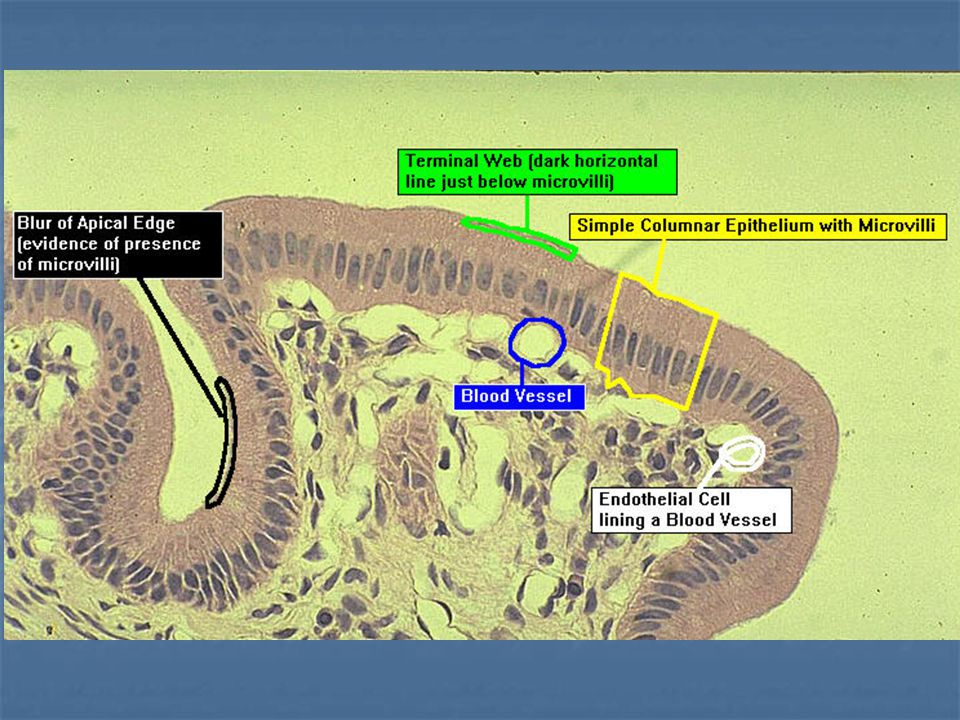 Çok Katlı Epitelin Sınıflandırılması Çok katlı epitel dokusu isimlendirilirken, serbest yüzeye komşu olan hücrenin özellikleri dikkate alınır Bazal membran Serbest yüzey Bağ dokusu