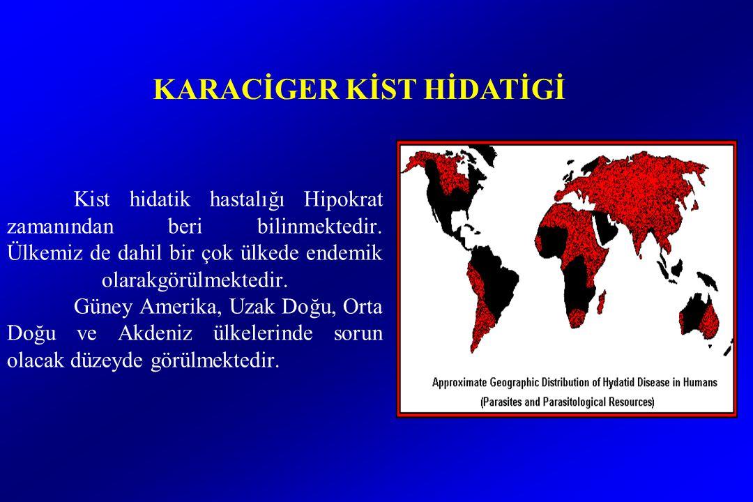 Kist hidatik hastalığı Hipokrat zamanından beri bilinmektedir.