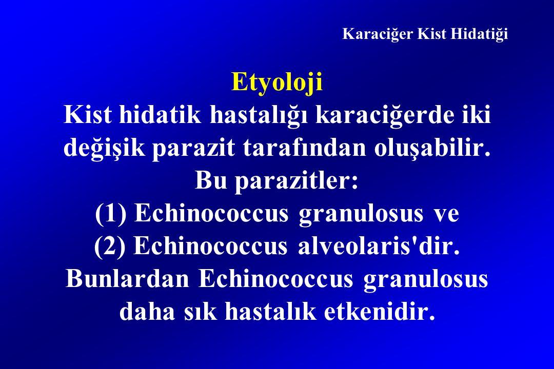 Etyoloji Kist hidatik hastalığı karaciğerde iki değişik parazit tarafından oluşabilir.