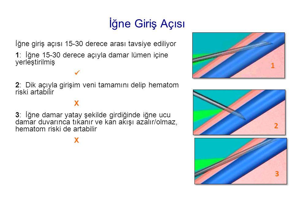 İğne giriş açısı 15-30 derece arası tavsiye ediliyor 1: İğne 15-30 derece açıyla damar lümen içine yerleştirilmiş 2: Dik açıyla girişim veni tamamını