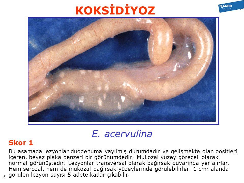 E.tenella Skor 4 Sekum duvarı kan veya geniş kazeöz parçalar ile aşırı şişmiş haldedir.