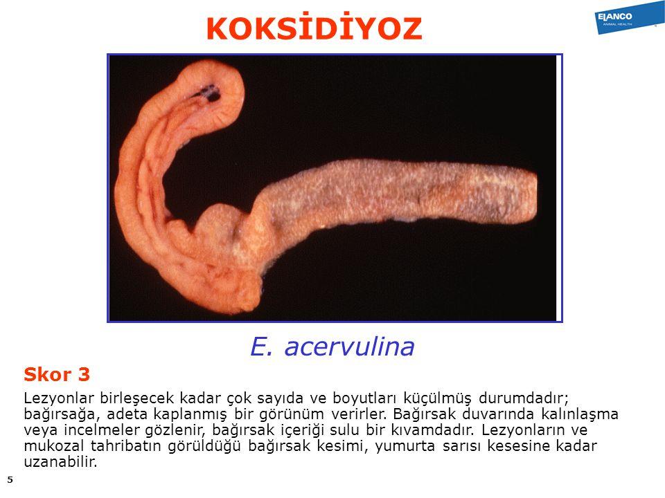 E. acervulina Skor 3 Lezyonlar birleşecek kadar çok sayıda ve boyutları küçülmüş durumdadır; bağırsağa, adeta kaplanmış bir görünüm verirler. Bağırsak
