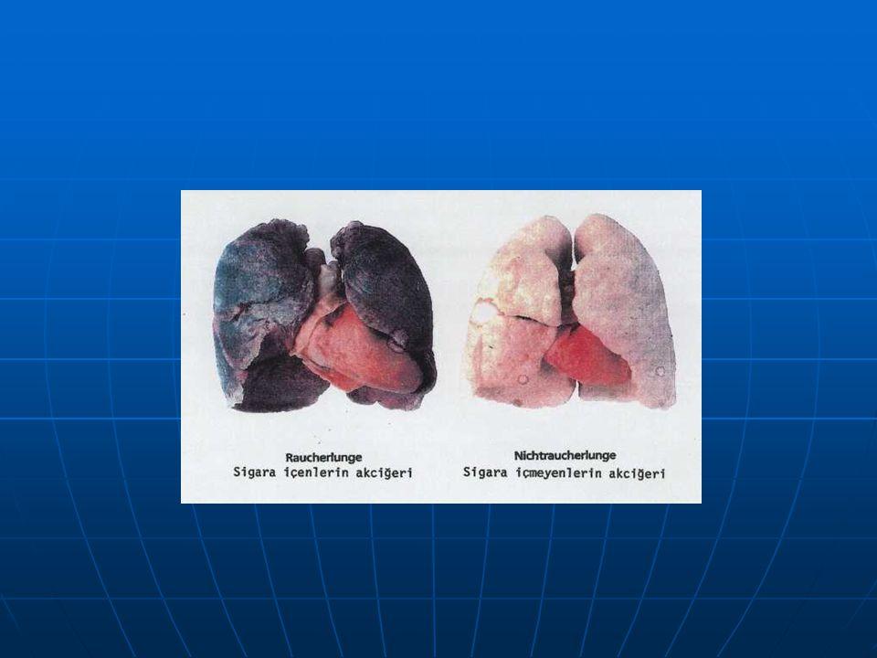 SİGARANIN BAZI ZARARLARI Artık herkes sigaranın ne kadar ne kadar zararlı olduğunu biliyor. Tütünün kanserojen olduğunu duymayan, bilmeyen kalmadı. An