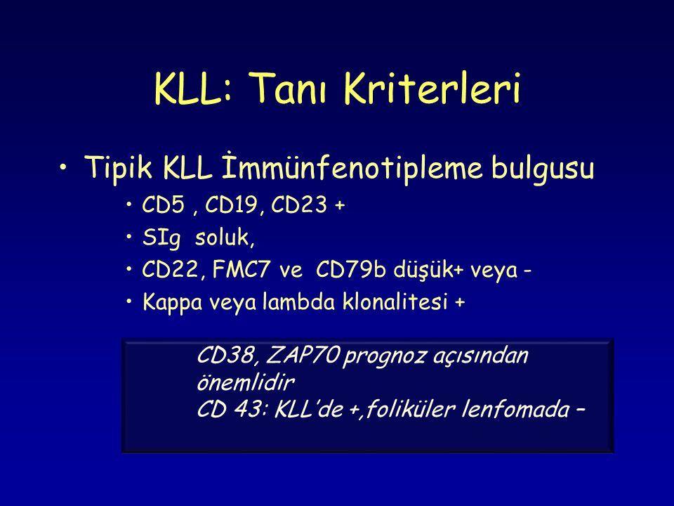 KLL: Tanı Kriterleri Tipik KLL İmmünfenotipleme bulgusu CD5, CD19, CD23 + SIg soluk, CD22, FMC7 ve CD79b düşük+ veya - Kappa veya lambda klonalitesi + CD38, ZAP70 prognoz açısından önemlidir CD 43: KLL'de +,foliküler lenfomada –