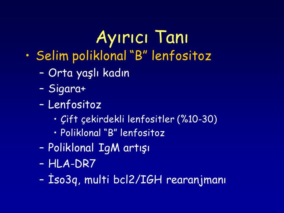 Ayırıcı Tanı Selim poliklonal B lenfositoz –Orta yaşlı kadın –Sigara+ –Lenfositoz Çift çekirdekli lenfositler (%10-30) Poliklonal B lenfositoz –Poliklonal IgM artışı –HLA-DR7 –İso3q, multi bcl2/IGH rearanjmanı