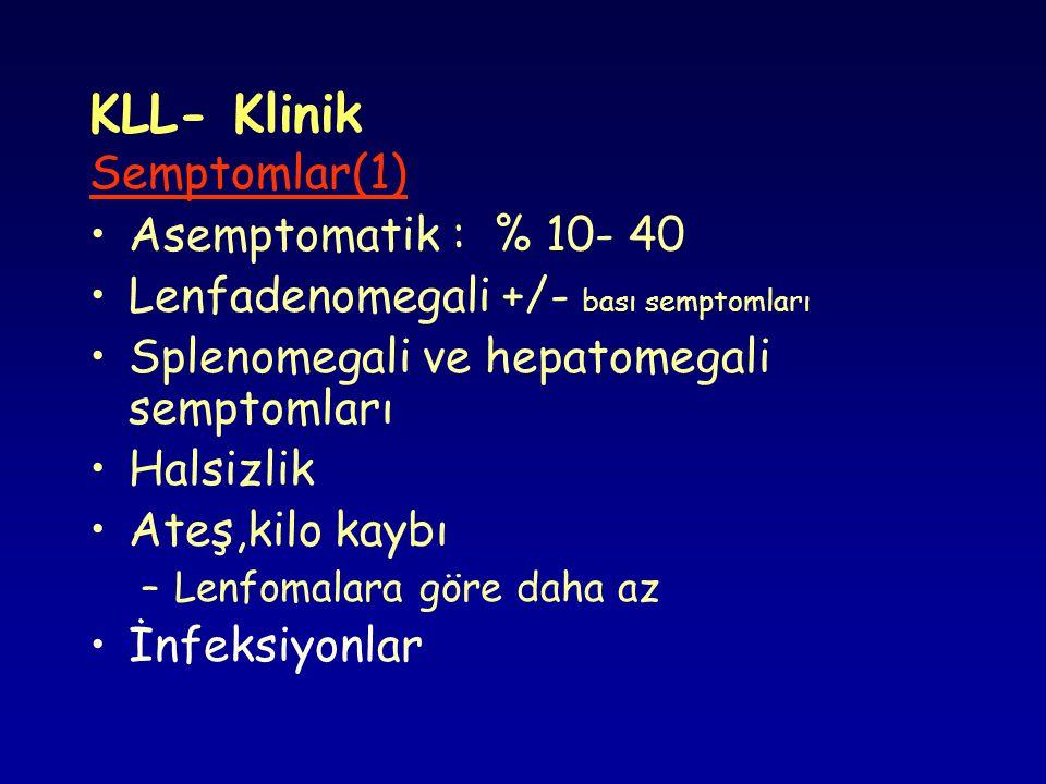 Dönüşümler : Prolenfositik dönüşüm Prolenfositik lösemide prolenfosit oranı : > % 55 Akut lenfoblastik lösemi Richter sendromu M.